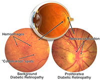 diabetic-eye-disease